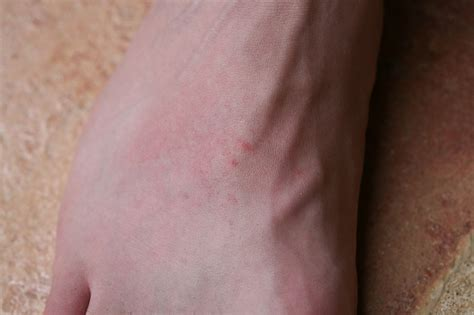 scorpion sting scorpion sting wound