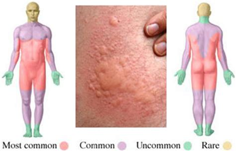 Does Your Liver Detox Cause Itching by Hives Causes Symptoms And Treatment Options