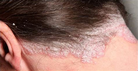 best hair for psoriasis best hairstyles for scalp psoriasis psoriasis scalp hair