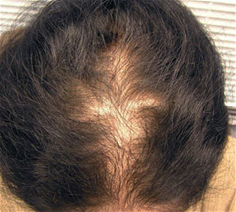 pattern hair loss female female pattern hair loss derm approved