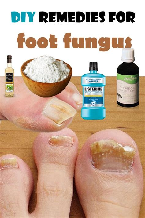 Foot Fungus Detox by 169 Best Images About Foot Nail Care On Nail