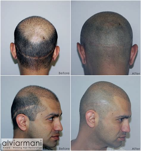 scalp micropigmentation to make hair ticker pictures alvi armani brings scalp micropigmentation to the table