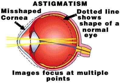 biofinity toric   lens saver