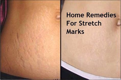 home remedies for stretch marks trusper