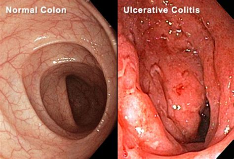 J Pouch Blood In Stool by Ulcerative Colitis Surgery What To Expect In Pictures