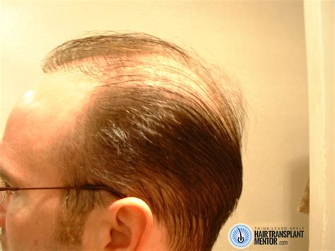 sol ombre 613 janet hair 28 pieces bad hair transplant have you had bad hair transplant