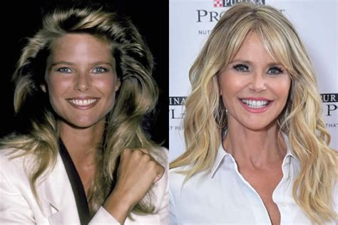 Christie Brinkley Gets Emergency Surgery by Christie Brinkley Is It Skin Care Or Plastic Surgery