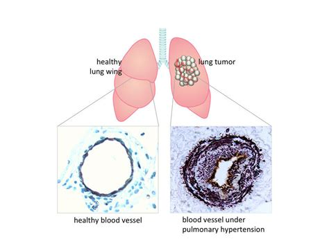 patient care news the face of lung cancer changes but lung cancer triggers pulmonary hypertension
