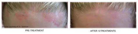 light treatment for scalp psoriasis psoriasis treatment philadelphia mainline pa