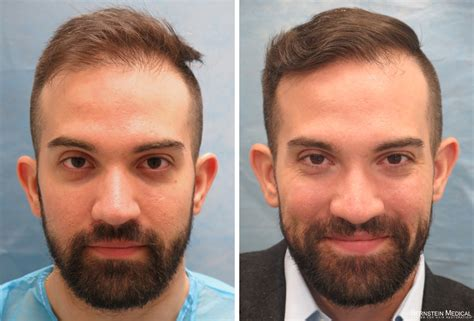 how important right hairstyle transplant best hair transplants for men hair transplant nyc hair