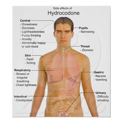 How To Naturally Detox From Vicodin by Chart Of The Side Effects Of Opioid Hydrocodone Charts