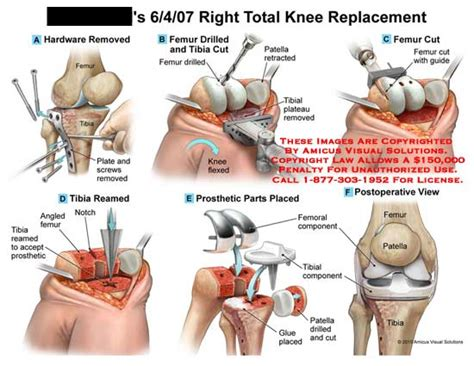 total knee replacement diagram diagram of a knee replacement images how to guide and