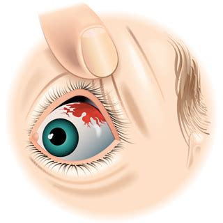 Busted For Blood Thinner by Broken Blood Vessels In The Eye The Causes And Cures