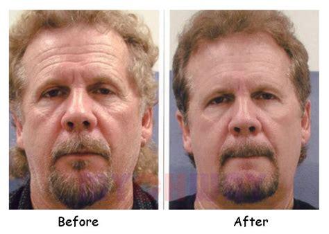 lt el450c buy elight ipl laser rf skin rejuvenation hair