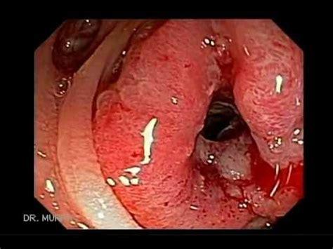 Blood In Stool After Colonoscopy by Colonoscopy Colon Cancer Descending Colon