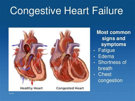 congestive failure congestive failure study