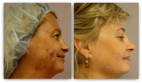 broadband light treatment cost laser skin rejuvenation minneapolis skin laser treatment