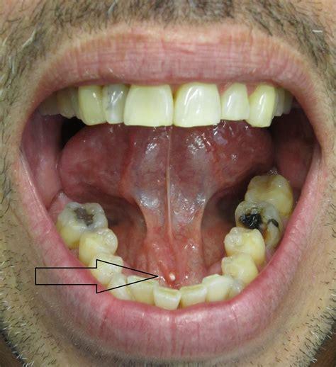salivary calculi calculi salivary