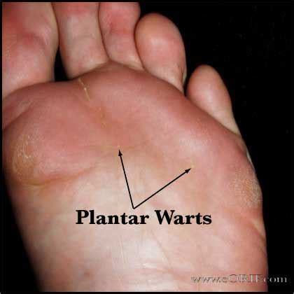 Planters Warts On Feet Katy Perry Buzz How To Treat A Planters Wart