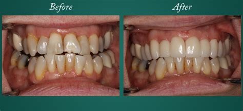 smile gallery    dental  smile