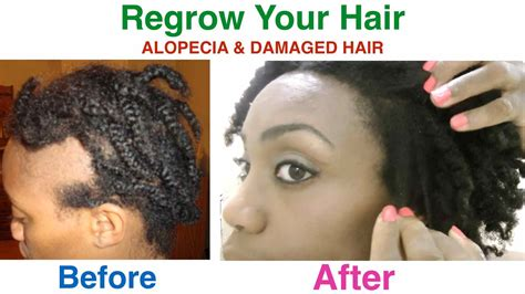 growing back afro american hair after chemo how to regrow your hair alopecia damaged hair youtube