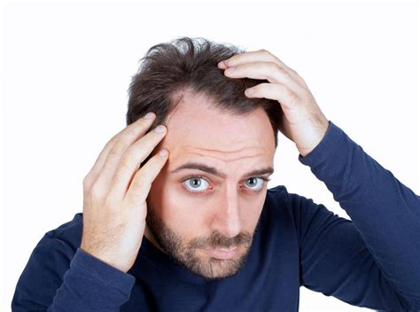 male public hair style learn about hair loss advanced hair restoration