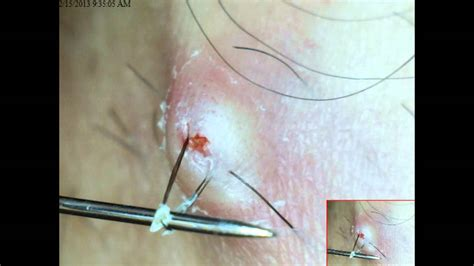 how to treat infected chin hair best ingrown hair youtube