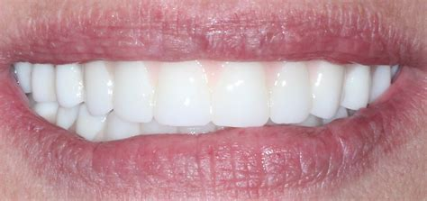 dentures in a day implant teeth in a day ms smith s story white wolf dental