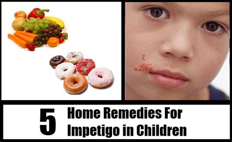 5 home remedies for impetigo in children remedy