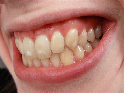 retiro de brackets y tipos de ortodoncia invisible