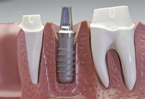titanium teeth dental implants advanced and surgery