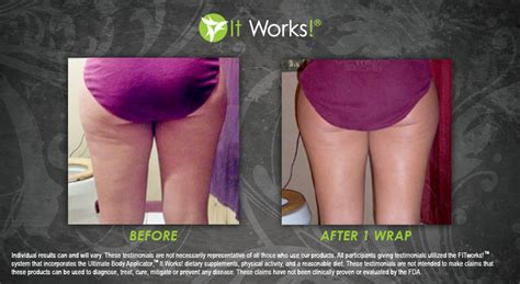 This Cellulite Works by Cellulite Treatments Do They Really Work It Works