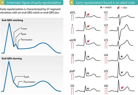 ecg pattern meaning early repolarization pattern on ecg early repolarization