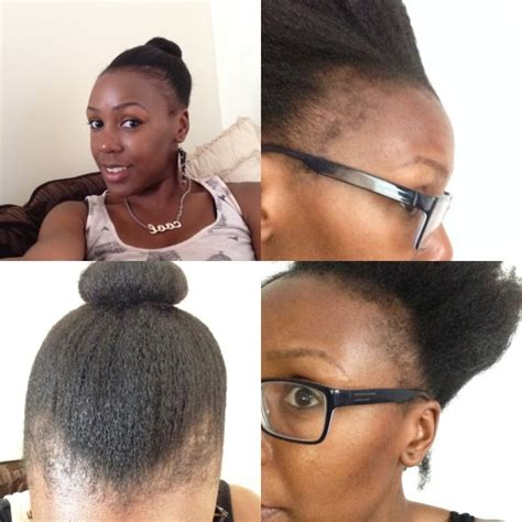 how to regrow african american temple hair does hair regrow after scalp ringworm regrow hair