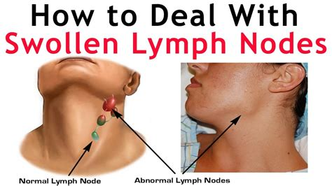 lymph nodes swollen how to deal with lymph nodes neck how to check swollen lymph nodes in neck