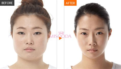 the square jaw line why korean facial contouring surgery guide reviews