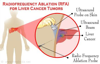 Radiofrequency Ablation Rfa For Liver Cancer Tumors