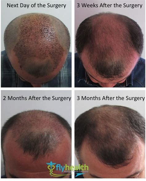hair transplant growth timeline   head