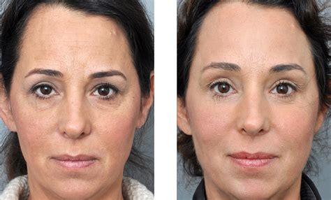 forehead surgery before and after brow lift baton rouge dr jon perenack endoscopic surgery