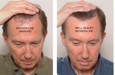male hair transplant costs brow lift plastic surgeon san francisco ca dr james