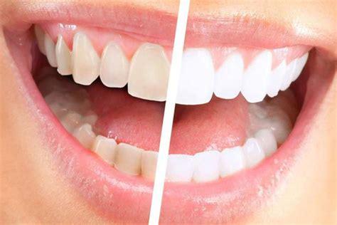 apparecchio denti interno costi sbiancamento denti professionale cannizzo studio costi