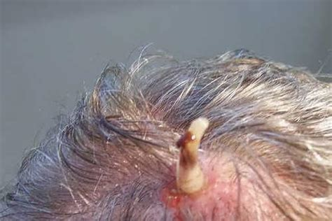 lalat parasit yang tumbuh di dalam kulit manusia