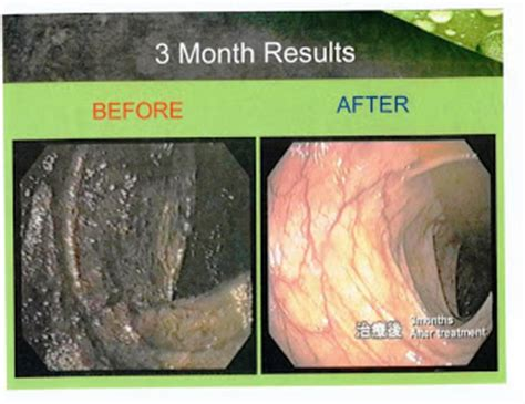 Strong Acid Ph2 5 kangen water colon cancer treatment before and after
