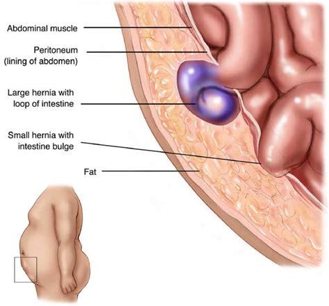 Strangulated Ventral Hernia Side View
