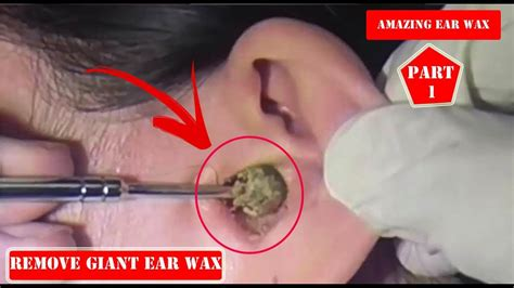 ear wax ear wax removal at home ear cleaning asmr ear
