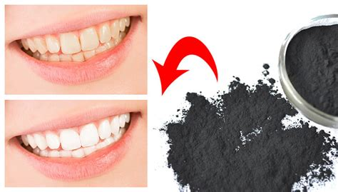 charcoal  whiten  teeth