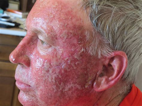 u light treatment for actinic keratosis actinic keratosis part ii country chatter