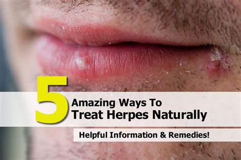 cold sores photos treating herpes home remedies 2014