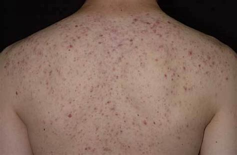 pimples on back back acne pictures