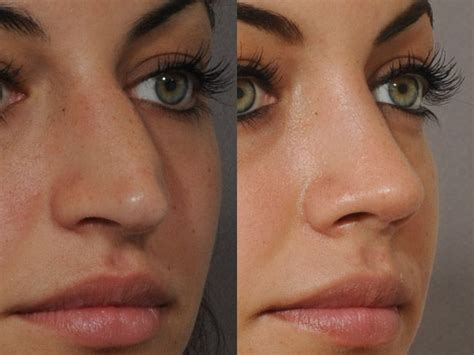 nose shaper before and after rhinoplasty surgeons best rhinoplasty
